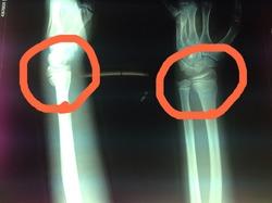 コーレス骨折(若木骨折)の早期回復はエコルスタ整骨院の酸素カプセル療法.jpg