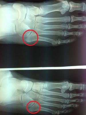 下駄骨折・中足骨骨折の専門治療はエコルスタ整骨院.jpg