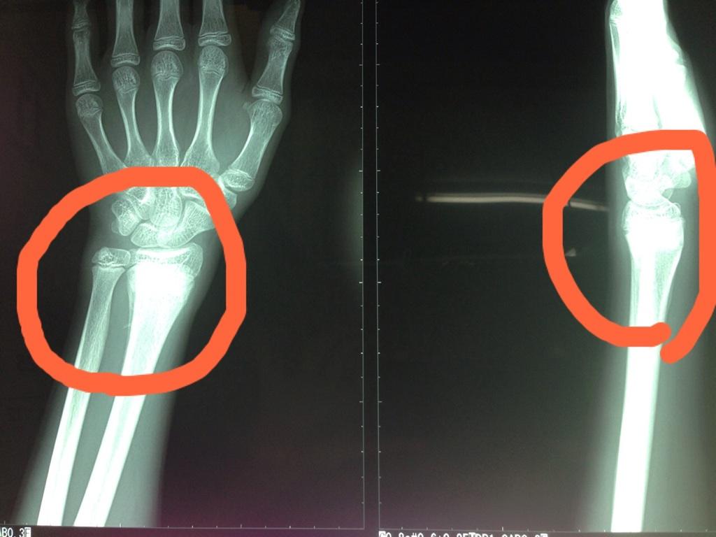 コーレス骨折(若木骨折)酸素カプセル療法の症例①|市川市南行徳エコルスタ整骨院の画像